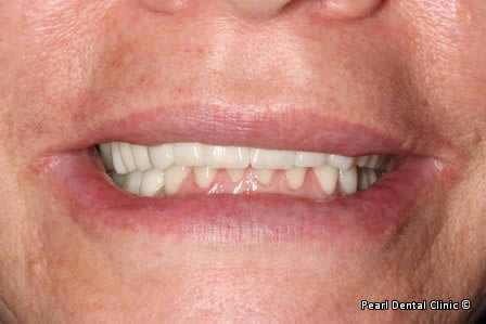 Mouth Rehabilitation Before After - Full smile