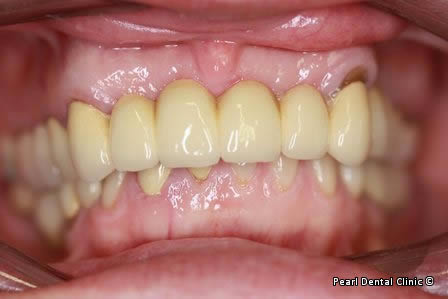 Mouth Rehabilitation Before After - Full arches mouth rehabilitation