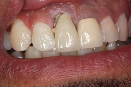 Soft Tissues Grafting Before After - Upper tooth ill crown fitting/ root decay