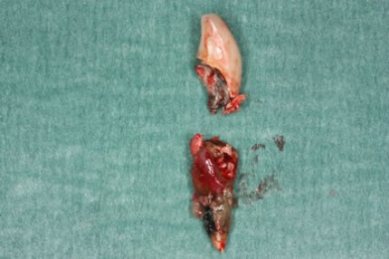 Soft Tissues Grafting Before After - Root outside fracture/ decay broken post