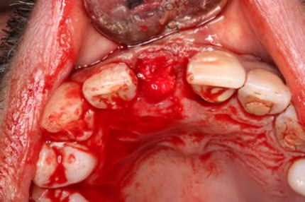Soft Tissues Grafting Before After - Bone formation perio collagen membrane over Bio-Oss Granules