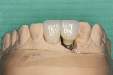 Soft Tissues Grafting Before After - Model patient two crown teeth placed