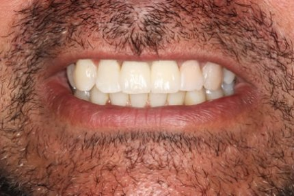 After Soft Tissues Grafting - Front crown implant placed