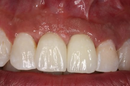 Before After Soft Tissues Grafting - End result close up