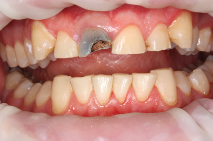 Tooth Wear Treatment Before After - Full arch worn down teeth