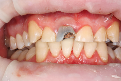 Tooth Wear Treatment Before After - Top/Bottom arch teeth after white filling