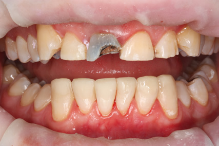 Tooth Wear Treatment Before After - Lower teeth white filling