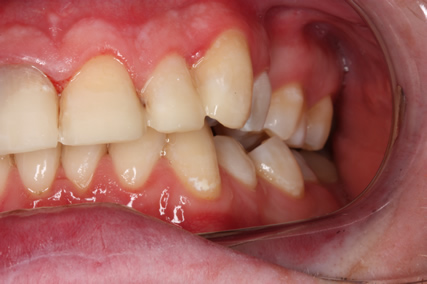 Tooth Wear Treatment Before After - Left side upper/lower teeth not in contact