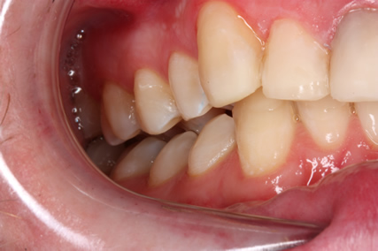 Tooth Wear Treatment Before After - Right side upper/lower teeth not in contact