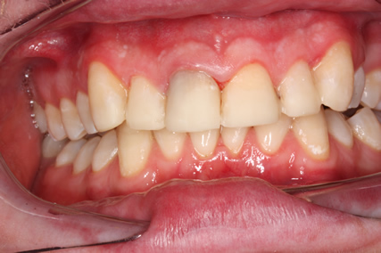 Tooth Wear Treatment Before After - over eruption upper/lower teeth come together
