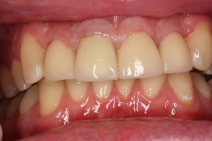 Tooth Wear Treatment Before After - Upper/Lower teeth after cementation