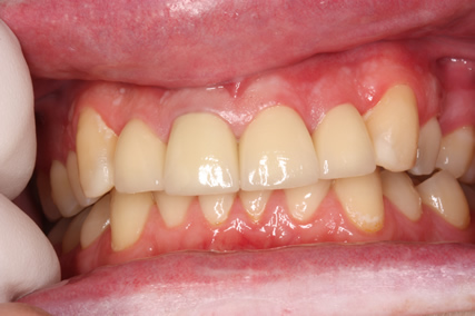 Before After Tooth Wear - Full arch healthy, contoured shape, full bite teeth