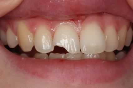 Front Incisor Before After - Top upper tooth incisor