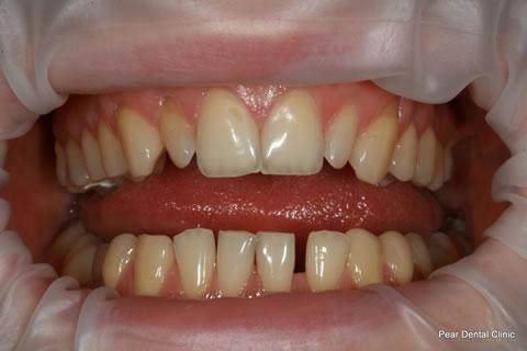 Teeth Gaps Before After - Full arch upper/lower teeth gaps