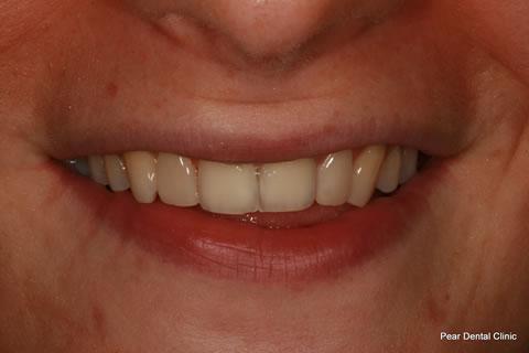 AfterTeeth Gaps - Upper teeth composite bonding