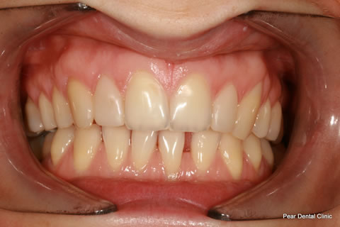 AfterTeeth Gaps - Full arch upper/lower teeth composite bonding