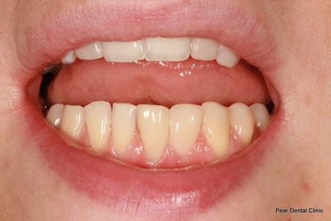AfterTeeth Gaps - Lower teeth composite bonding