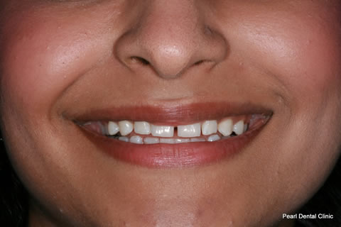 Teeth Gaps Before After - Front upper teeth gap