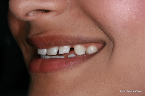 Teeth Gaps Before After - Left front upper teeth gap