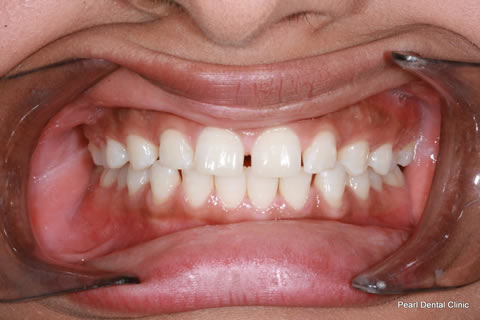 Teeth Gaps Before After - Full arch upper/lower teeth gap