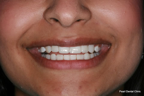 Teeth Gaps Before After - Full upper/lower composite bonding