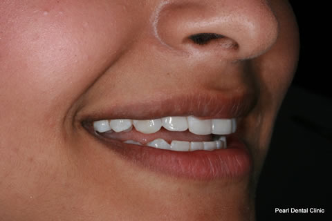 Teeth Gaps Before After - Right upper/lower composite bonding