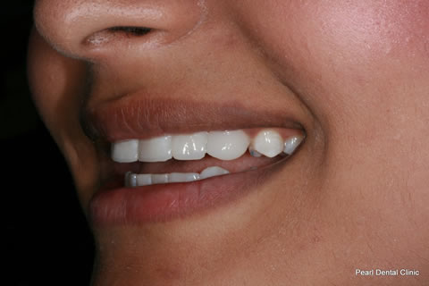 Teeth Gaps Before After - Left upper/lower composite bonding