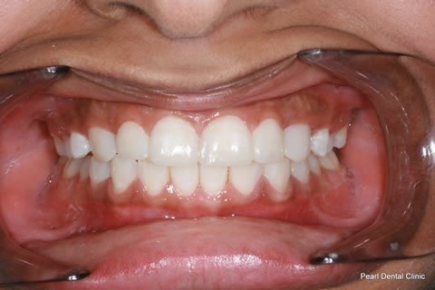 Teeth Gaps Before After - Full arch upper/lower teeth composite bonding
