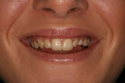 Front Teeth Appearance Before After - Upper front teeth