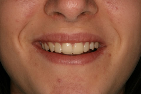 Front Teeth Appearance Before After - Composite veneers upper front teeth