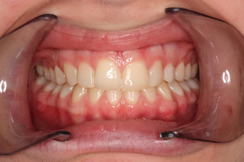 Front Teeth Appearance Before After - Full upper/lower arch teeth composite veneers
