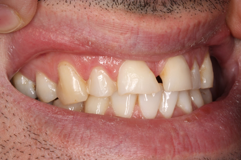 Incisors/ Gaps Before After - Upper teeth gap