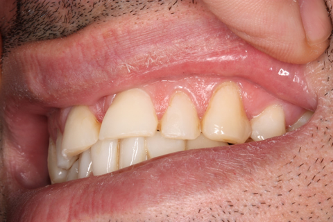 Incisors/ Gaps Before After - Upper teeth incisor