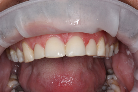 Incisors/ Gaps Before After - Upper teeth composite veneers