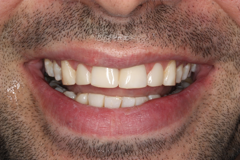 Incisors/ Gaps Before After - Upper teeth composite veneers, restored incisor
