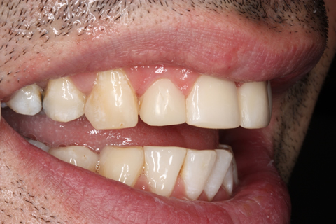 Incisors/ Gaps Before After - Upper teeth composite veneers, restored