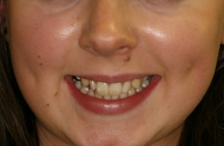 Front Incisors Before After - Top front incisors