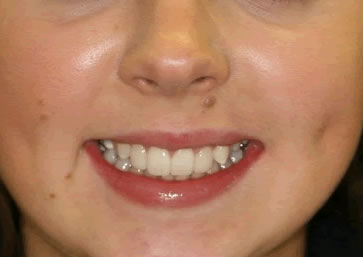 Front Incisors Before After - Top front composite veneers