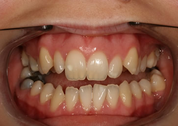 Front Incisors Before After - Upper front incisors