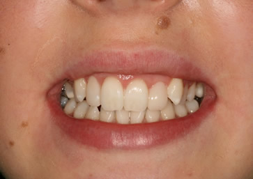 Front Incisors Before After - Upper front composite veneers