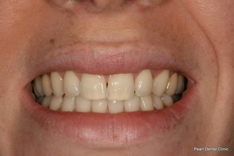 Black Gap Before After - Front top teeth gap