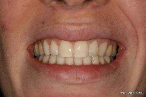 Black Gap Before After - Upper teeth tooth drill composite veneers