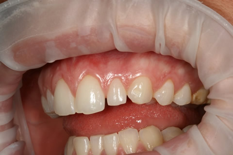 Uneven Edges/ Gaps Before After - Full upper/lower arch teeth uneven edges