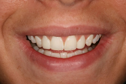 Uneven Edges/ Gaps Before After - No tooth drill composite veneers upper front teeth