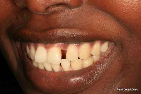 Front Teeth Gap Before After - Upper teeth gap