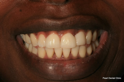 Front Teeth Gap Before After - Upper teeth composite veneer