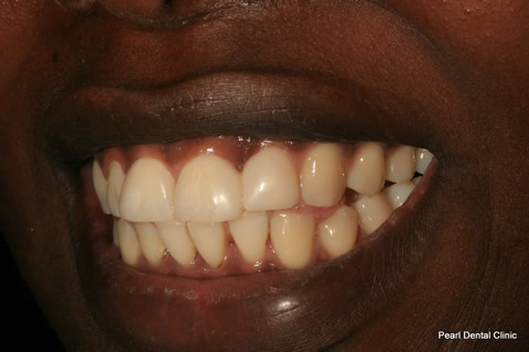 Front Teeth Gap Before After - Top teeth composite veneer