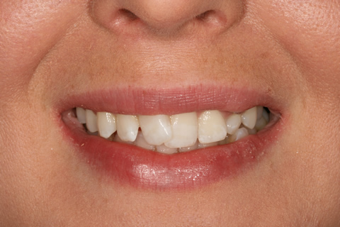 Over-Crowded Teeth Before After - Upper front over crowded teeth