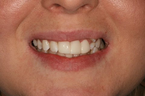Over-Crowded Teeth Before After - Upper front composite veneer teeth
