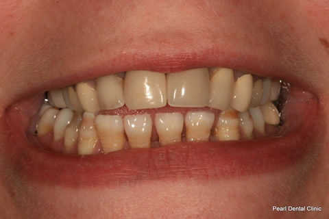 Lower Teeth Gap/ Discoloured Before After - Lower hypoplastic discoloured teeth